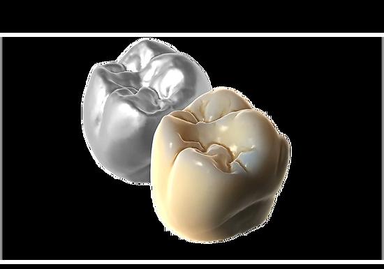 Exocad - Module True Smile