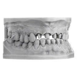 Scheu Dental - Imprimo LC Model 1kg Gris