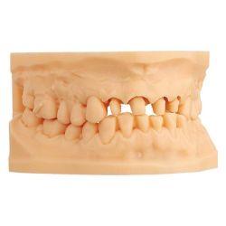 Scheu Dental - Imprimo LC Model 1kg Beige