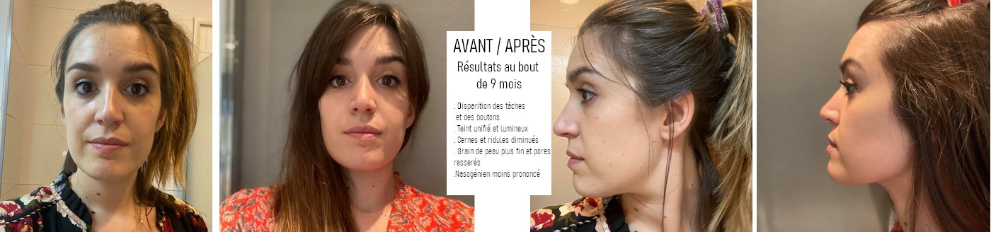 avant_apres_javotine_.jpg